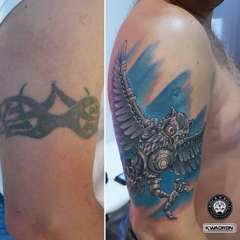 jak wygląda zabieg usuwania tatuażu