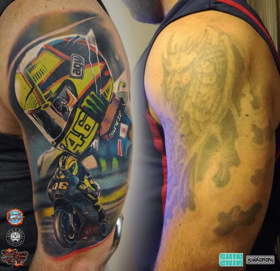 jak usunąć świeży tatuaż
