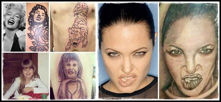 czy można usunąć tatuaż