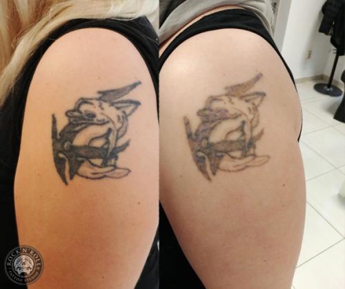 Efekt rozjaśniania tatuażu laserem po pierwszej sesji