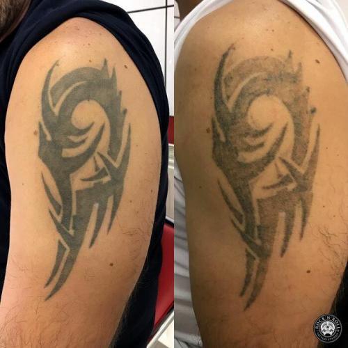 Tatuaż po pierwszej sesji laserem
