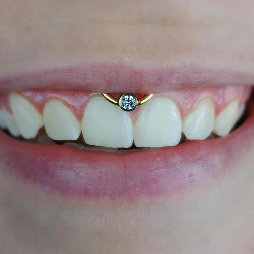 Przekłucie typu smiley z biżuterią Swarovskiego